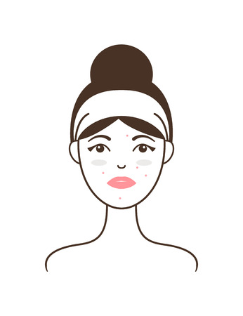 Young Girl with Acne and Dark Circles under Eyes  イラスト・ベクター素材