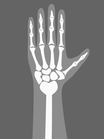 Human arm under x-rays color vector illustration, hand with white bones and finger joints isolated on grey backdrop, skinless body part medical photo