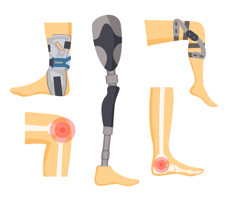 Pain in joints and orthopedic retainers on legs colorful vector illustration with white human s bones, red dots of ache surfaces, medical prosthesis
