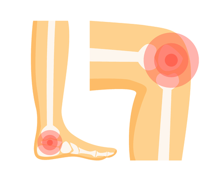Orthopedic problems in foot and knee, localisation showed with help of red circle on human body parts organism, set isolated on vector illustration Illustration