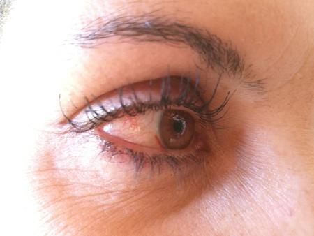 red eye: red eye