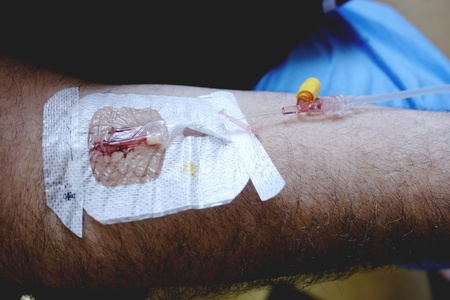 Arm during the drip Stock Photo