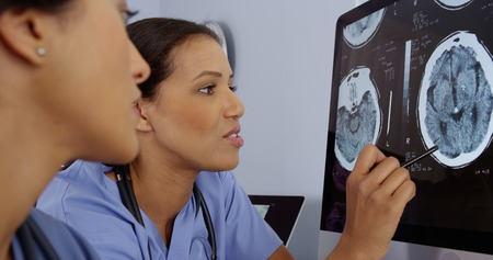 Close up of two female doctors working together on computer brain scans