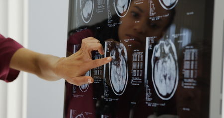 Doctors reviewing brain x-rays Stock Photo