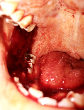 dientes con caries: humans impacted and decayed teeth with blood in the mouth