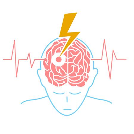 El concepto de la enfermedad es un derrame cerebral en forma de una silueta de un hombre y una flecha que engendra el cerebro, como un símbolo de la enfermedad y en el fondo de un cardiograma. Icono en el estilo lineal Foto de archivo - 88598132