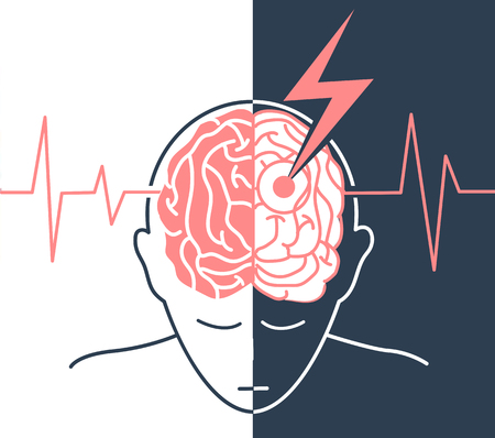 concept of the disease is a stroke, life after before and after a strokein the form of a silhouette of a man and an arrow that engenders the brain, as a symbol of the disease and on the background of a cardiogram Illustration