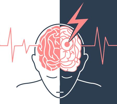 il concetto di malattia è un ictus, vita dopo prima e dopo un ictus sotto forma di una sagoma di un uomo e una freccia che genera il cervello, come simbolo della malattia e sullo sfondo di un cardiogramma Vettoriali