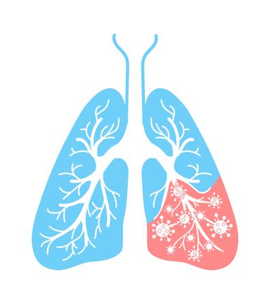 icoon van longaandoeningen, longontsteking, astma, kanker in de vorm van longanatomie en virussen, ziekteverwekkende bacteriën. Pictogram in lineaire stijl