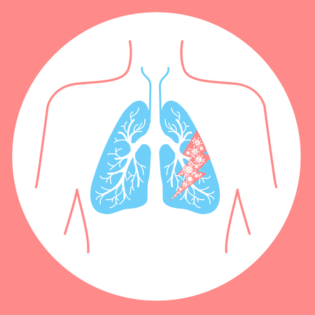 icon of lung disease, pneumonia, asthma, cancer in the form of lung anatomy and viruses causing disease. Icon in linear style Illustration