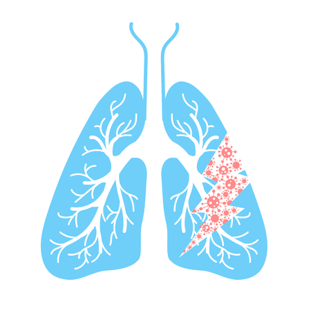 Icoon van longaandoeningen, longontsteking, astma, kanker in de vorm van longanatomie en virussen die ziekte veroorzaken. Pictogram in lineaire stijl Stockfoto - 89339058