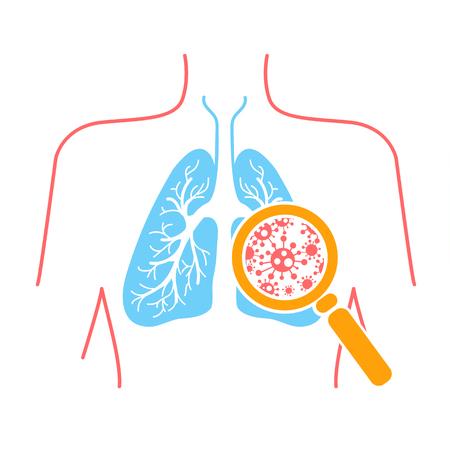 icoon van longaandoeningen, longontsteking, astma, kanker in de vorm van longanatomie en virussen die ziekte veroorzaken. Pictogram in lineaire stijl