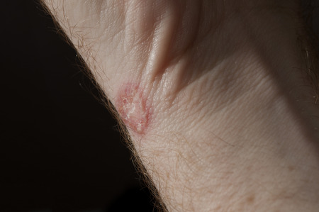 Ringworm on white man skin / Fungus Infection / Mycosis