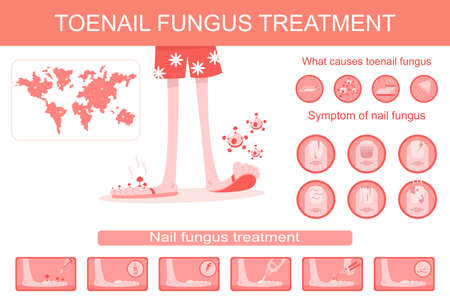 Toenail fungus treatment medical infographics. Vector cartoon flat illustration of infection, symptoms and therapy of nail and stop disease.