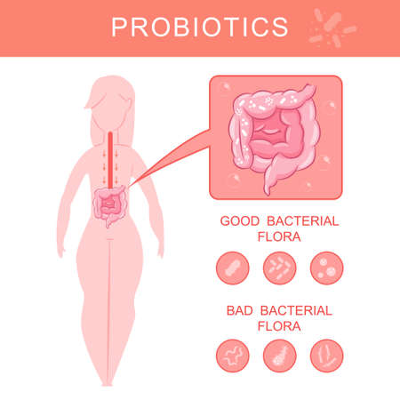 Probiotics infographics with woman silhouette and gut with good and bad bacterial flora. Vector cartoon flat intestine microorganism illustration. Stock Illustratie
