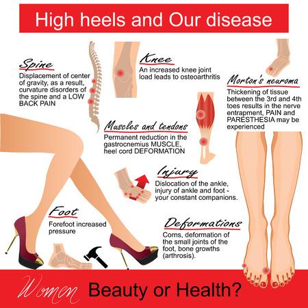 dolor de rodilla: Infografics mujer: Los tacones altos y Nuestra enfermedad. Ilustración del vector.