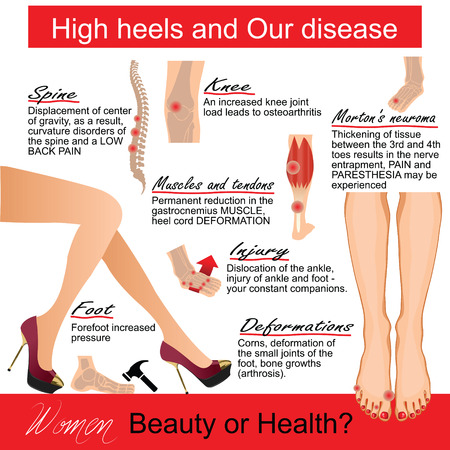 back injury: Infografics  woman: High heels and Our disease.  Vector illustration.