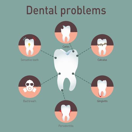 bad breath: Tooth disease Illustration