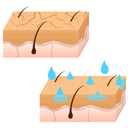 oily: Skin hydration and dry skin sectional view vector illustration. Illustration
