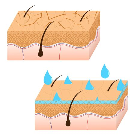 Skin hydration and dry skin sectional view vector illustration. Stok Fotoğraf - 59950209