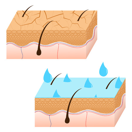 dewy: Skin hydration and dry skin sectional view vector illustration. Illustration