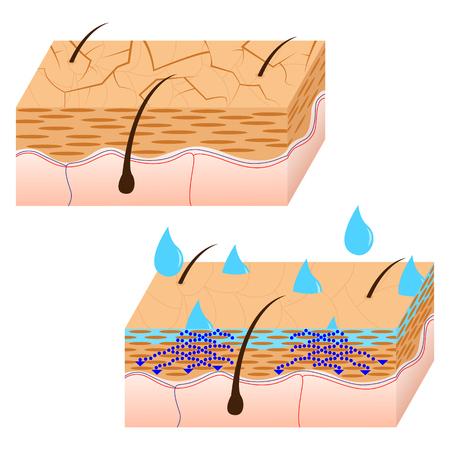hidratación de la piel y la piel seca vista en sección ilustración vectorial.