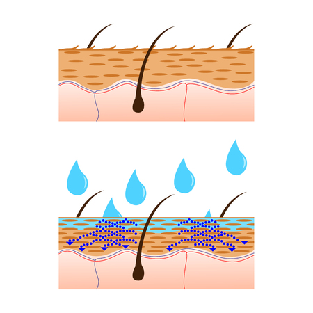 hydrate: Skin hydration and dry skin sectional view vector illustration. Illustration