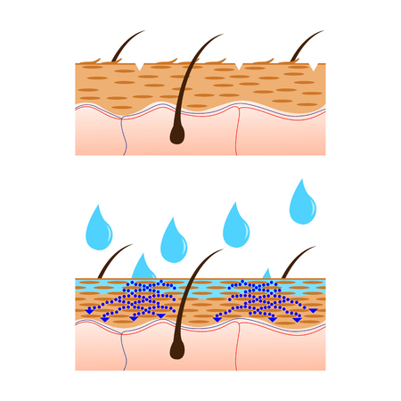 Skin hydration and dry skin sectional view vector illustration. Stok Fotoğraf - 61664344