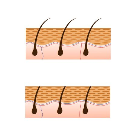 friction: Depilation and skin with hair sectional view. Schematic representation of skin and depilation isolated on white background. Vector illustration.