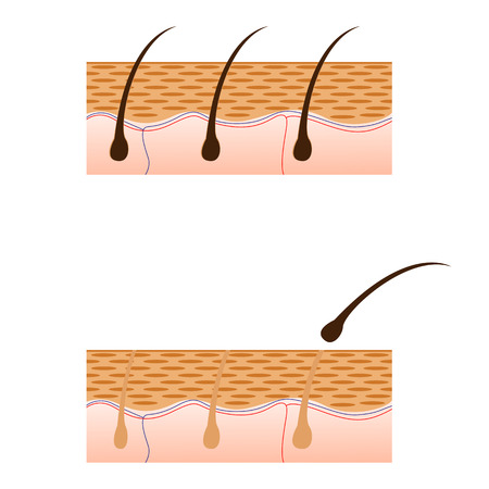 threading hair: Epilation and skin with hair sectional view. Schematic representation of skin and epilation isolated on white background. Vector illustration. Illustration