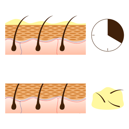 smooth legs: Depilation with chemical depilatory and skin with hair sectional view. Schematic representation of skin and depilation isolated on white background. Vector illustration.