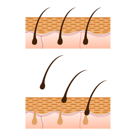 epilator: Epilation and skin with hair sectional view. Schematic representation of skin and epilation isolated on white background. Vector illustration. Illustration