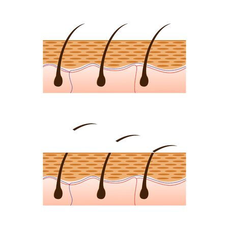 silky hair: Depilation and skin with hair sectional view. Schematic representation of skin and depilation isolated on white background. illustration.