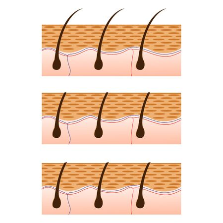 Depilation and skin with hair sectional view. Schematic representation of skin and depilation isolated on white background. illustration.