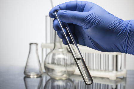 Hand in glove holding test tube on blurred background