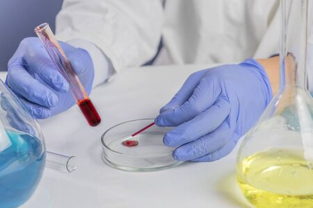 Male hands holding red blood whole blood in test tube for the sample. Health and medical, blood analyzing concept. Close up.