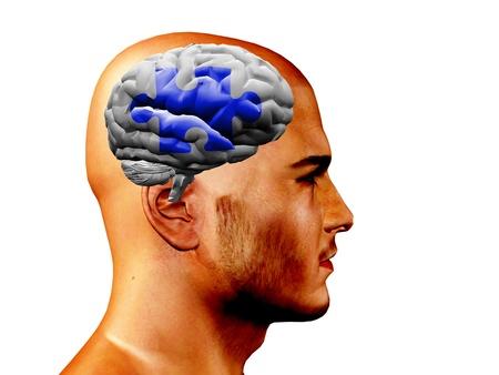 Brain puzzel