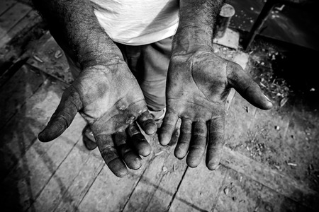 Worker is showing his chapped hands, dirty and injured palms.
