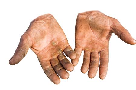 manos sucias: Trabajador est� mostrando sus manos agrietadas, palmas sucios y heridos, sobre fondo blanco.