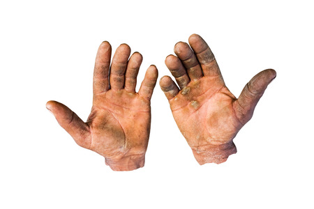 Worker is showing his chapped hands, dirty and injured palms, against white background. photo