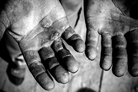 Worker is showing his chapped hands, dirty and injured palms. photo