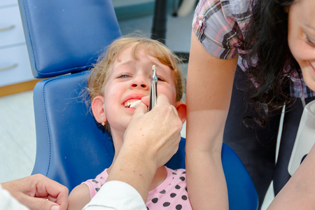 Preschooler child is at dentist office, medical forceps with just extracted milk tooth.