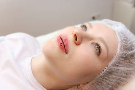A beautiful girl lies on a cosmetology couch after a lip augmentation procedure with hyaluronic acid. Droplets of blood from the injections froze on her lips
