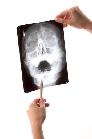 Inspecting x-ray shot Stock Photo