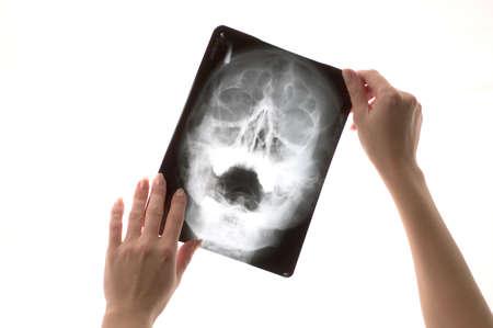 Inspecting x-ray shot Stock Photo - 632361