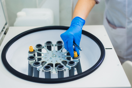 Platelet-Rich plasma preparation. Tube with blood in hands. Centrifuge. Background