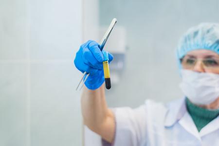 실험실에서 몇 가지 테스트를 위해 원심 분리기 안에 일부 샘플 혈액 튜브를 설정 수석 여성 화학자의 근접 촬영.