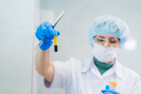 いくつかサンプル血管内ラボでいくつかのテストのための遠心分離機を設定するシニア女性化学者のクローズ アップ。