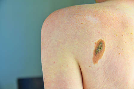 Hairy skin mole. Close up picture of dangerous brown nevus on human skin - melanoma
