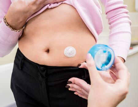 Doctor install patient insulin catheter for a simple injection of insulin. Diabetes concept Zdjęcie Seryjne